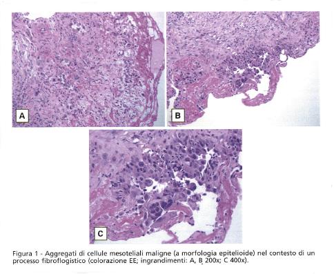 Diagnosi mesotelioma