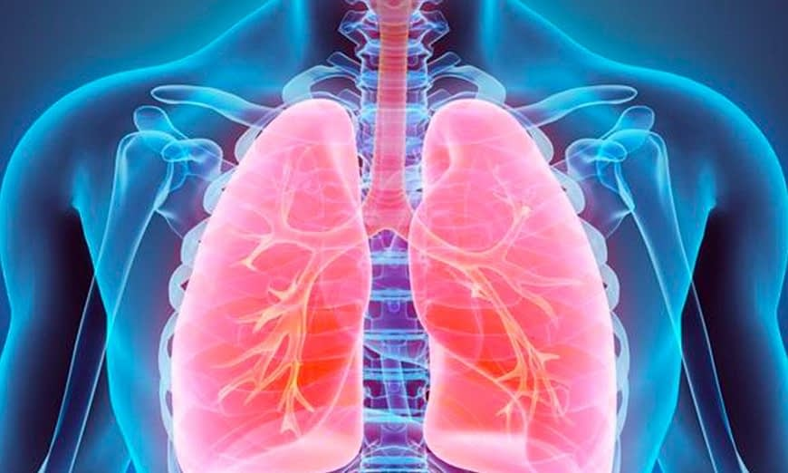 Amianto fibrosi pleurica