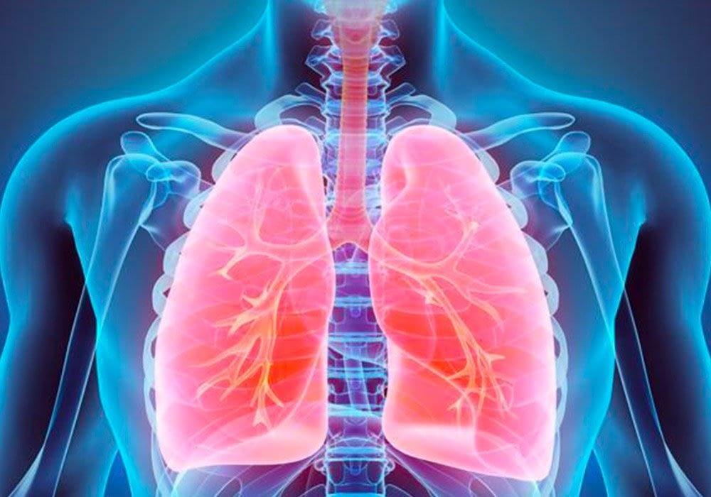 Amianto fibrosi pleura e polmoni
