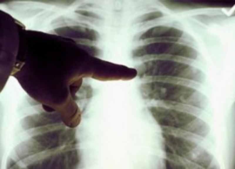 sintomi tumore polmonare