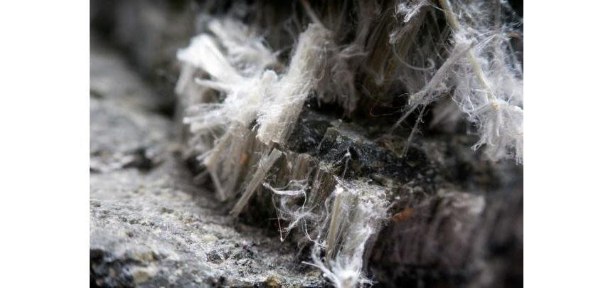 Patologie asbesto